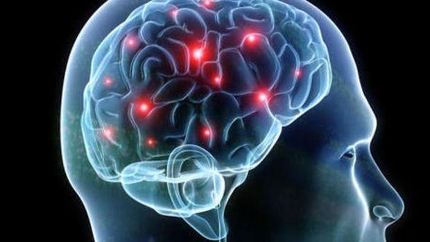 brain headers