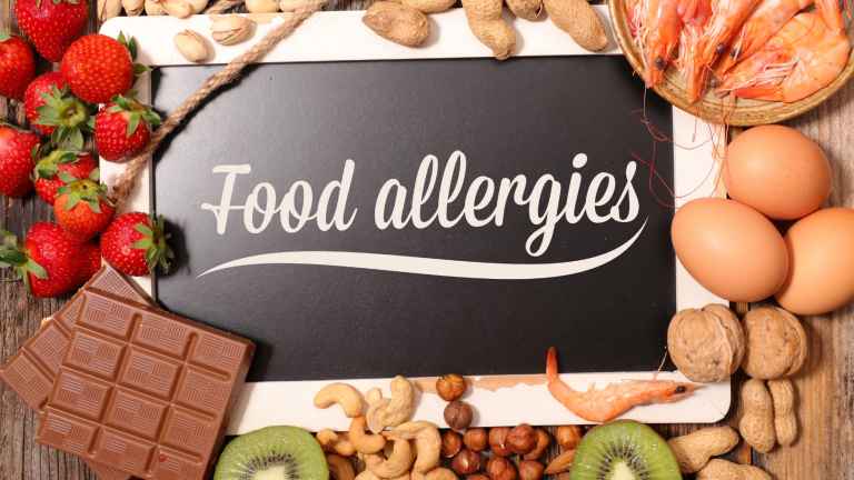 Navigating Celebrations With Food Allergies
