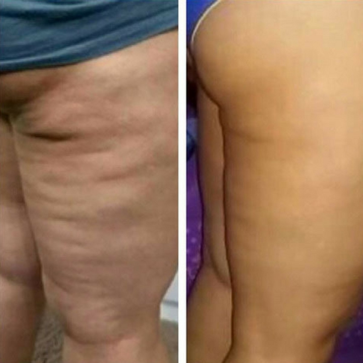 Deal with Cellulite: Ashley Black FasciaBlaster