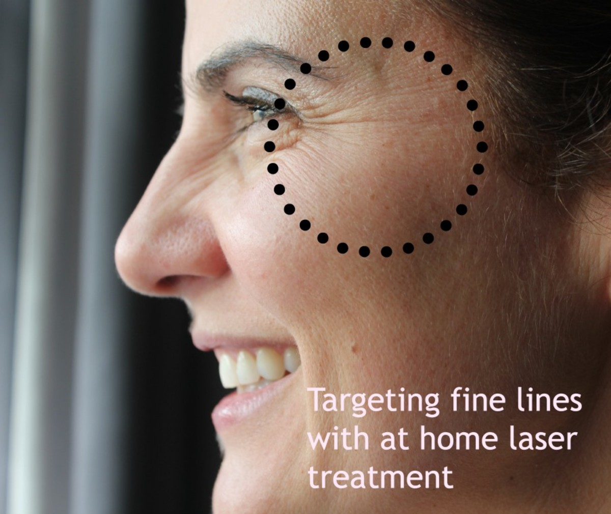 age defying laser treatment testing