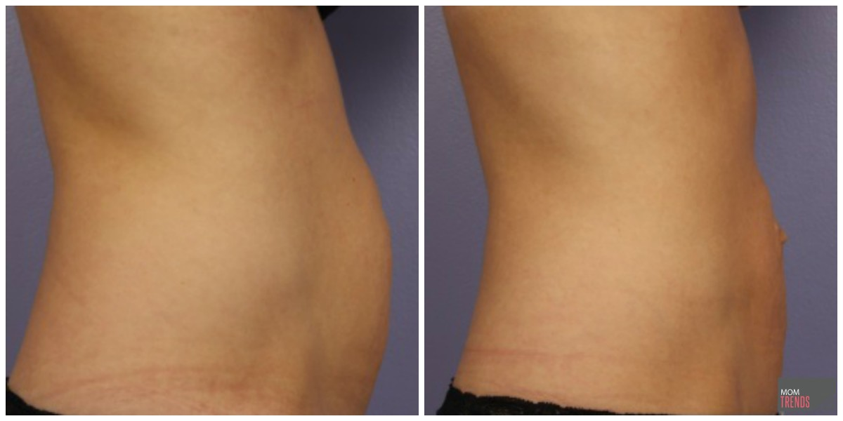 Cool Sculpting results