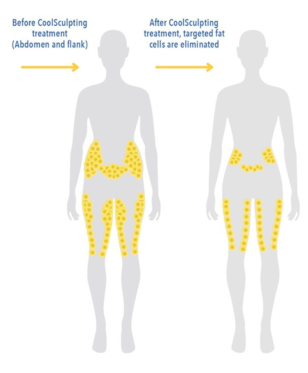 CoolSculpting fat_reduction