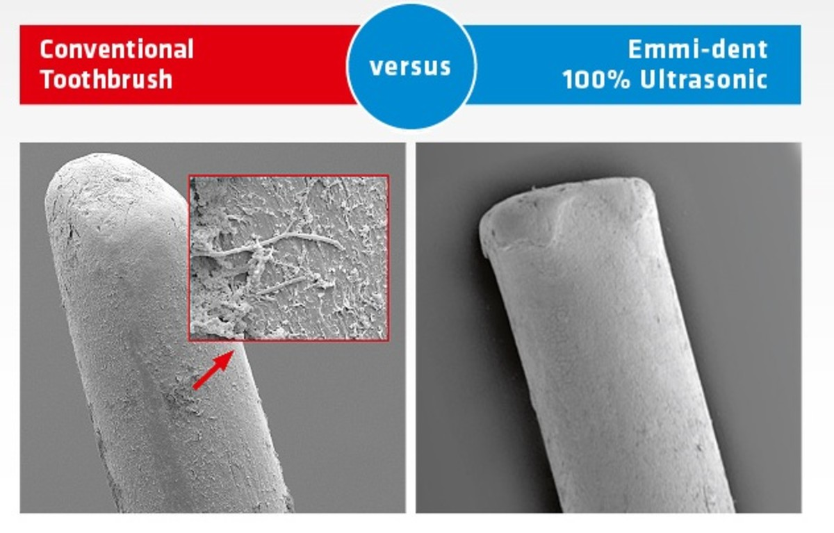 Emmi-dent review, dental tips